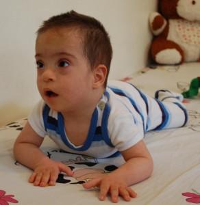Children With Hypothyroidism