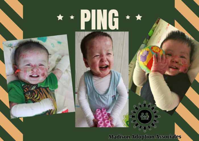PD: A collage of 3 photos of Ping on a green & tan striped background. In the 1st, he lays in a crib wearing a green tiger t-shirt w/ medical wraps around his arms & an NG tube for nutrition in his nose; in the 2nd, he sits independently w/ a toy in front of him, wearing a blue tank top & medical wrap over his chest & arms; & in the 3rd, he lays on his back holding a toy ball, wearing a black t-shirt & medical wraps. He has a huge smile in all the photos, dark eyes, & dark hair that sticks up adorably in all directions!