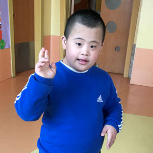 down syndrome and jump Diagnosis: a genetic condition in which an individual has a full or extra copy of chromosome 21 signs and symptoms: symptoms associated with down syndrome vary from person to person and can range from mild to severe.